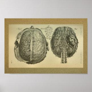 1850 Vintage Anatomy Print Brain Spine