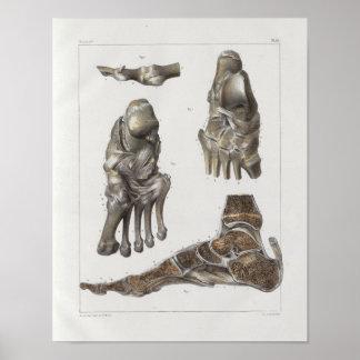 1867 Foot Bones Vintage Anatomy Print