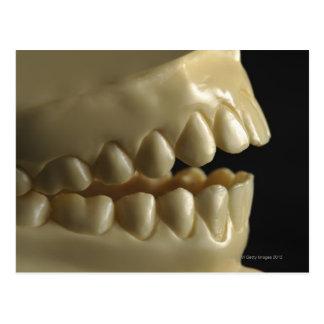 A dental model postcard