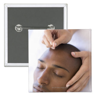 Acupuncture. Acupuncturist inserting a needle 2 Inch Square Button