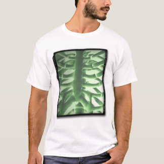 ACWE Portable Chest X-Ray T-Shirt