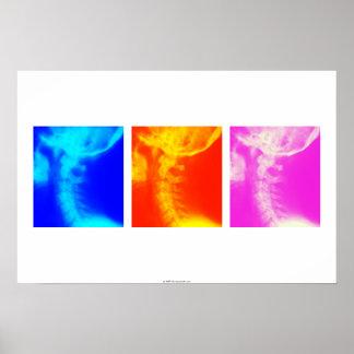 Affiche cervicale 2 de chiropractie de rayon X