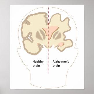 Alzheimer's disease brain Poster