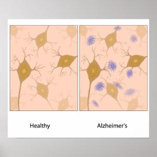 Alzheimer's disease brain tissue  Poster