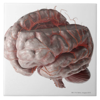 Arteries of the Brain 3 Tiles