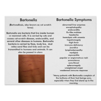 Bartonella Symptoms Educational Poster