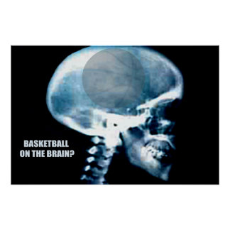 Basketball Head (X-ray) Poster