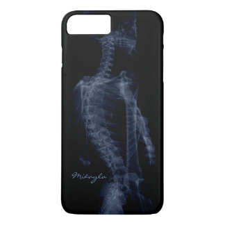 Beautiful, Personalized Body X-Ray iPhone 8 Plus/7 Plus Case