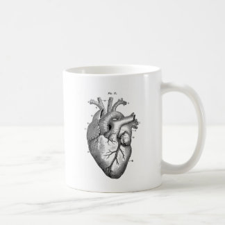 Black Anatomical Heart Coffee Mug