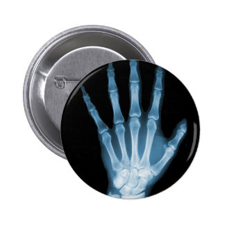 Blue X-ray Skeleton Hand 2 Inch Round Button