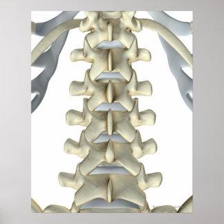 Bones of Lumbar Vertebrae Poster