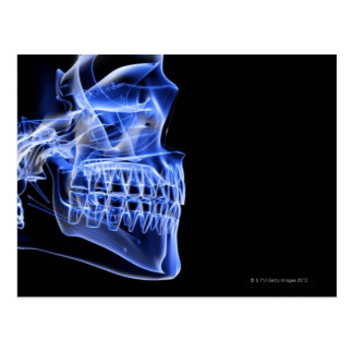 Bones of the Jaw Post Card