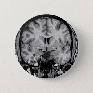Brain MRI, coronal slice 2 Inch Round Button