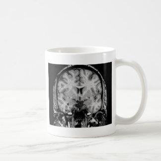 Brain MRI, coronal slice Coffee Mug