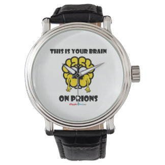 Brain on Prions Watch