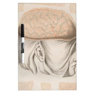 Brain One - Neuroanatomy Dry Erase Whiteboard