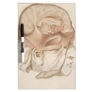 Brain Two - Neuroanatomy Dry-Erase Whiteboard