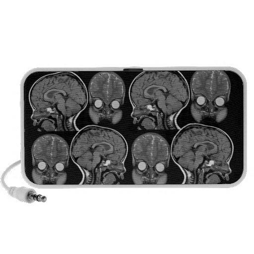 Brains! MRI Speaker