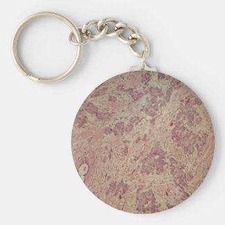 Breast cancer under the microscope basic round button keychain