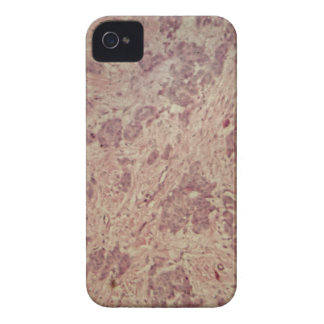 Breast cancer under the microscope Case-Mate iPhone 4 cases