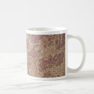 Breast cancer under the microscope coffee mug