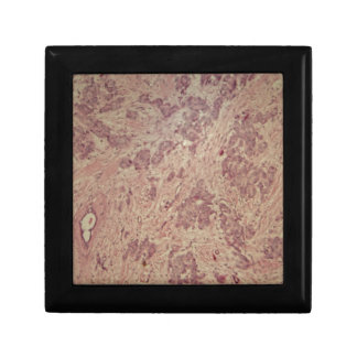 Breast cancer under the microscope gift box
