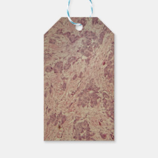 Breast cancer under the microscope gift tags