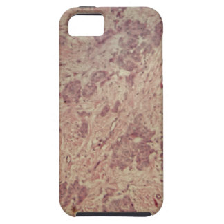 Breast cancer under the microscope iPhone 5 covers
