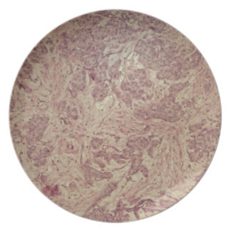Breast cancer under the microscope party plate