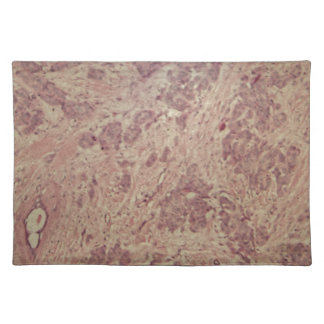 Breast cancer under the microscope placemat