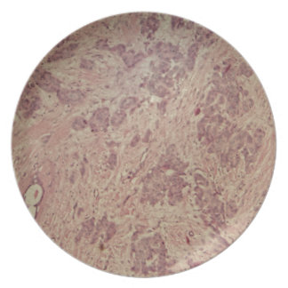 Breast cancer under the microscope plates