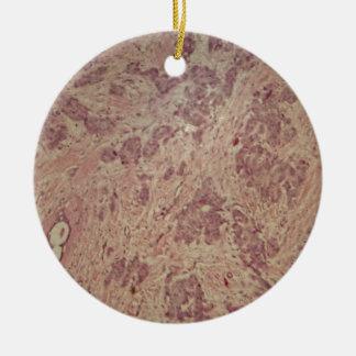 Breast cancer under the microscope round ceramic ornament
