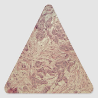 Breast cancer under the microscope triangle sticker