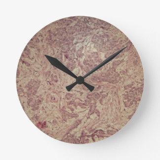 Breast cancer under the microscope wallclock