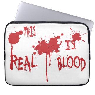 C est vrai sang housse ordinateur