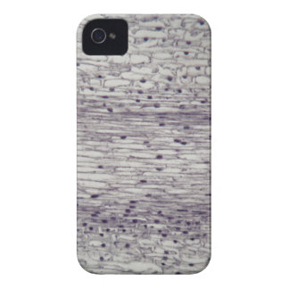 Cells of a root under the microscope. iPhone 4 cases
