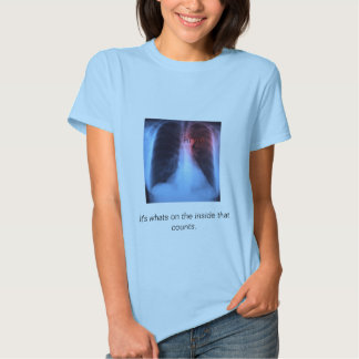 chest-x-ray heart, RT (R), It's whats on the in... Tshirts