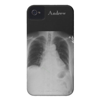 Chest X Ray w-name ~ iPhone 4 CaseMate ID case