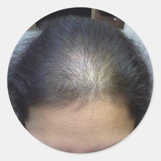 Cheveux T Autocollant Rond