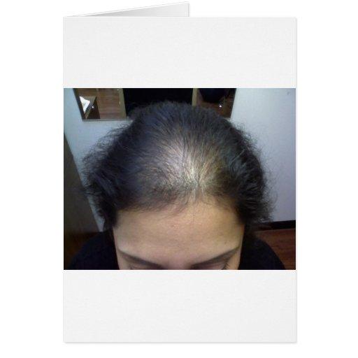Cheveux T Carte De Vœux