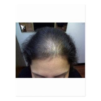 Cheveux T Carte Postale