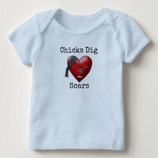"""Chicks Dig Scars"" T-Shirt"