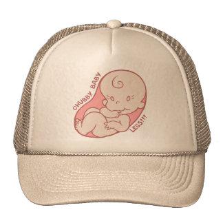 Chubby Baby Legs!!! Trucker Hat