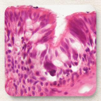 Ciliated epithelium under the microscope. coaster