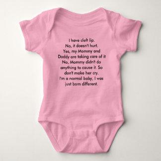 Cleft lip baby bodysuit