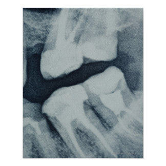 Close-up of a dental X-Ray Poster