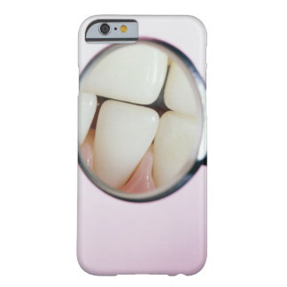 Close-up of teeth reflected in dental mirror barely there iPhone 6 case