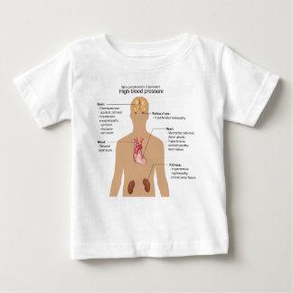Complications principales de diagramme t-shirt pour bébé