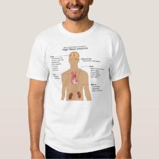 Complications principales de diagramme t-shirts