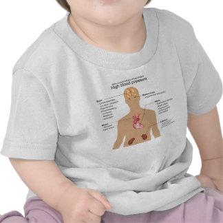 Complications principales de diagramme t-shirt